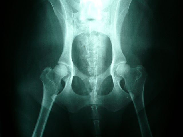 Canine Hip Dysplasia in Dogs, Normal Hips